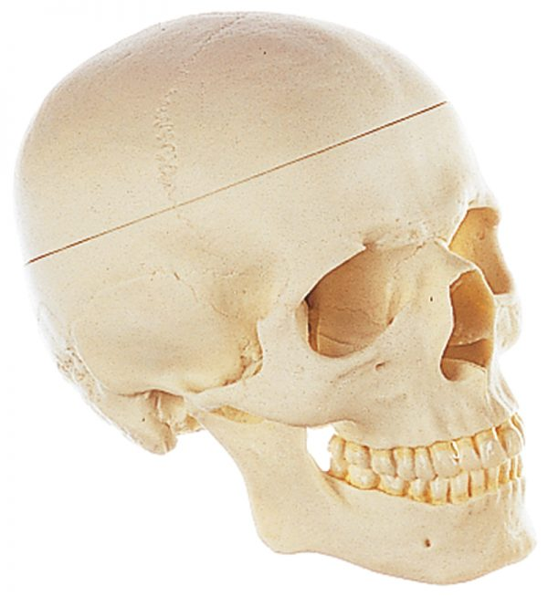 Craniu 1
