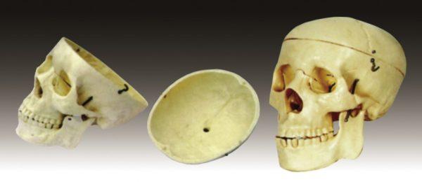 Craniu 2